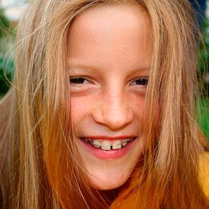 ortodoncia infantil en clinicadental coinsol
