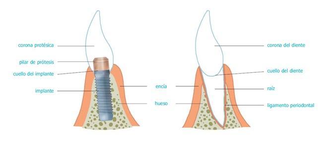 implantes dentales en Sevilla